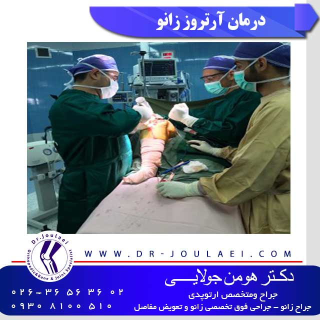 درمان-آرتروز-زانو