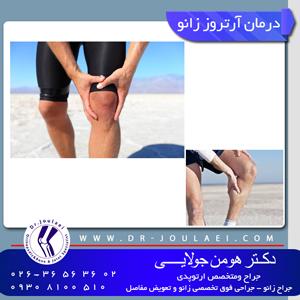درمان-آرتزوز-زانو