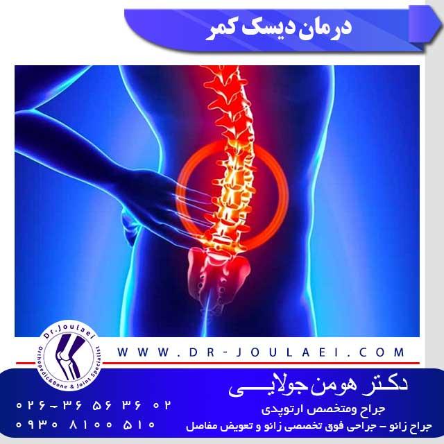درمان-دیسک-کمر