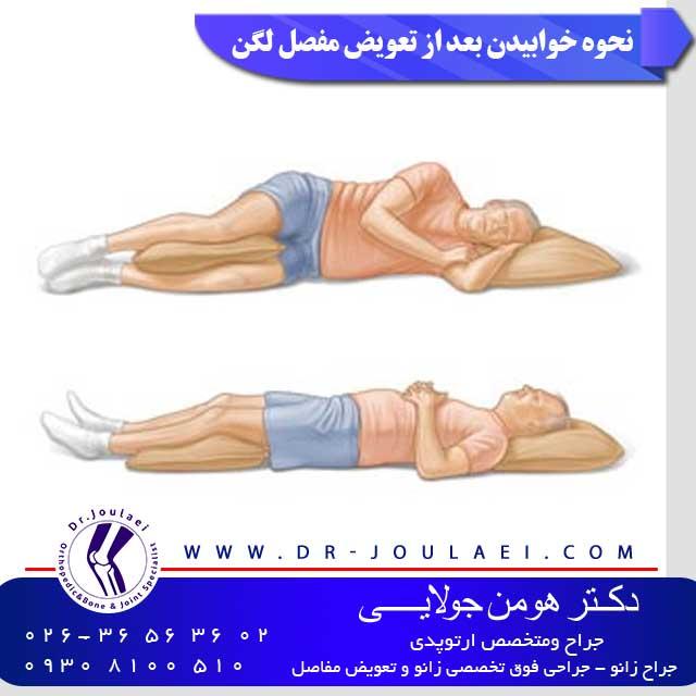 نحوه-خوابیدن-بعد-از-تعویض-مفصل-لگن
