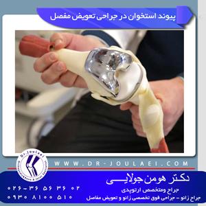 پیوند-استخوان-در-جراحی-تعویض-مفصل