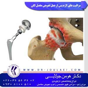 مراقبت های لازم پس از عمل تعویض مفصل لگن