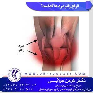 انواع درد زانو کدامند